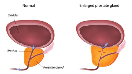 Enlarged Prostate Rendering