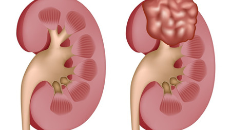Kidney Cancer Rendering