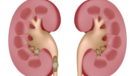 Kidney Stones Rendering