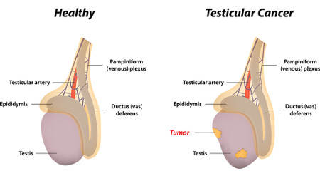 Testicular Cancer Rendering